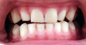 Фото зубов при бруксизме